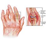 関節リウマチ-病気・症状と治療