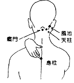 Stiff Neck Acupuncture Points