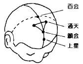 >Sinusitis Acupuncture Points