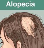 脱毛症-病気・症状と治療