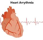 不整脈(心房細動)-病気・症状と治療