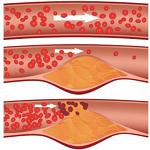 動脈硬化症-病気・症状と治療