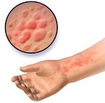 アトピー性皮膚炎-病気・症状と治療