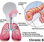 気管支炎-病気・症状と治療