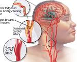 脳血管障害(脳卒中)-病気・症状と治療
