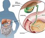 胆石症-病気・症状と治療