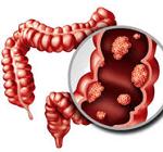 大腸癌-病気・症状と治療