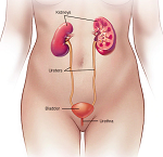膀胱炎-病気・症状と治療