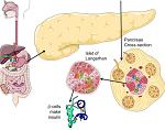 糖尿病-病気・症状と治療