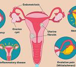 月経異常-病気・症状と治療