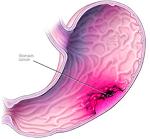 胃癌-病気・症状と治療