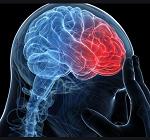 頭痛-病気・症状と治療