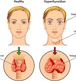 甲状腺機能亢進症(バセドウ病)-病気・症状と治療