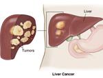 肝臓癌-病気・症状と治療