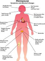 更年期障害-病気・症状と治療