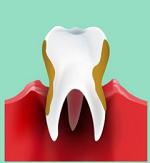 歯周病(歯槽膿漏症)-病気・症状と治療