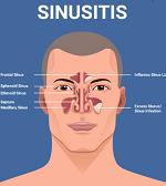 副鼻腔炎-病気・症状と治療