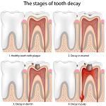 歯痛-病気・症状と治療