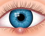 ものもらい(麦粒腫)-病気・症状と治療